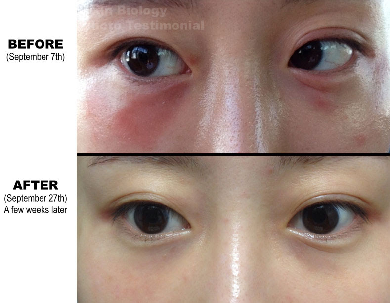 Anti Aging Retinol Anti Aging Before And After