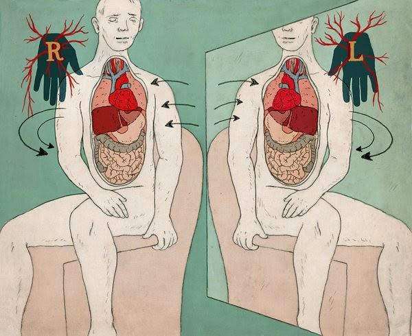 Situs inversus: cuando los órganos están al revés