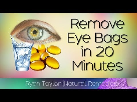 How To Remove Eye Bags (20 Minute Natural Remedies)