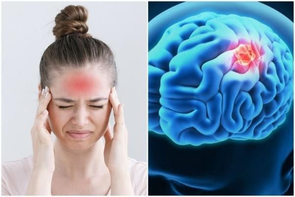 Cara Mengobati Tumor Otak Secara Alami