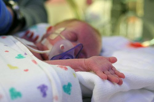 Preemie stress signs