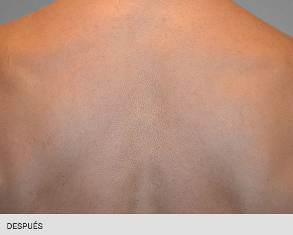 Eliminar Tatuajes Barcelona Ribe Clinic
