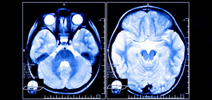 Brain Scans may Predict Depression Relapse