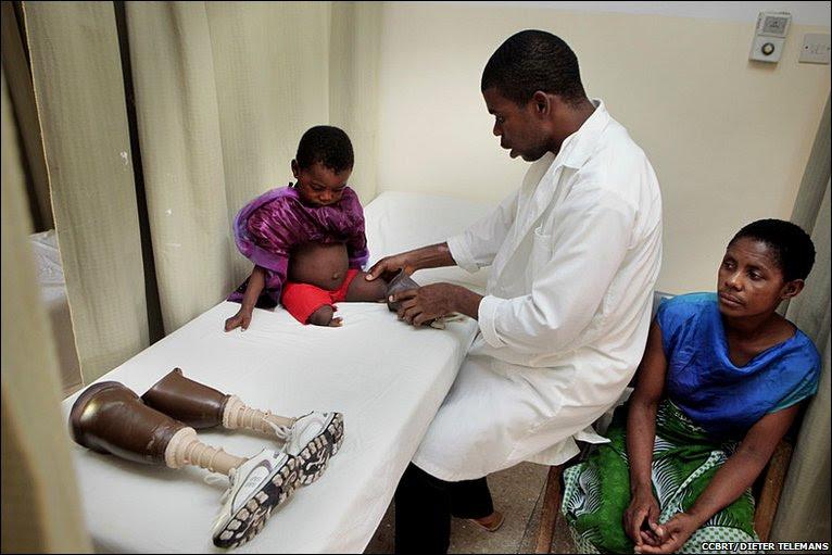 Ghanaian prosthetist Koho Moses Kofi and Amina and Asha © CCBRT/DIETER TELEMANS