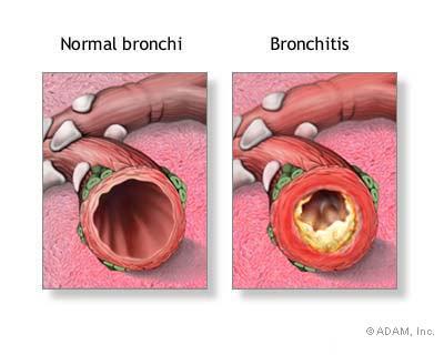Sinus Infection Mucus Plug