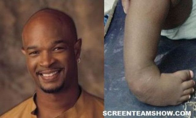 Celebrities and Their Physical Defects (17 pics)