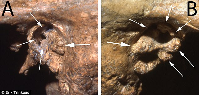 A and B: lateral views of the left and right external auditory meatus illustrating the large external bony growths in Shanidar 1's ear canals , especially the bridging ones on the right side. The arrows point to the bony growths