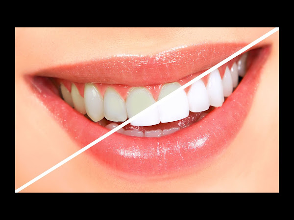 Does Home Bleaching Work For Whiter Teeth?
