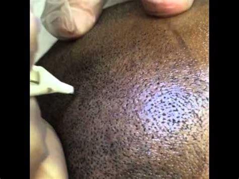 scalp pigmentation hair tattoo dark skin smc tino