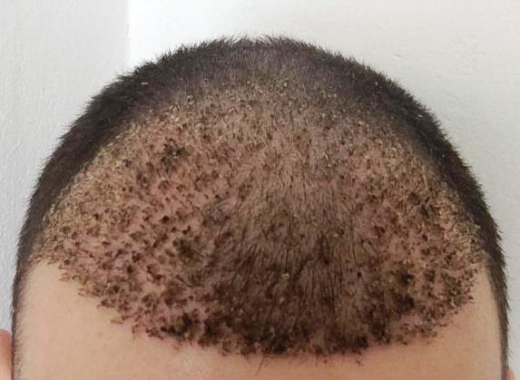 Falling Hairs with Dead Skin Attached after Hair ...