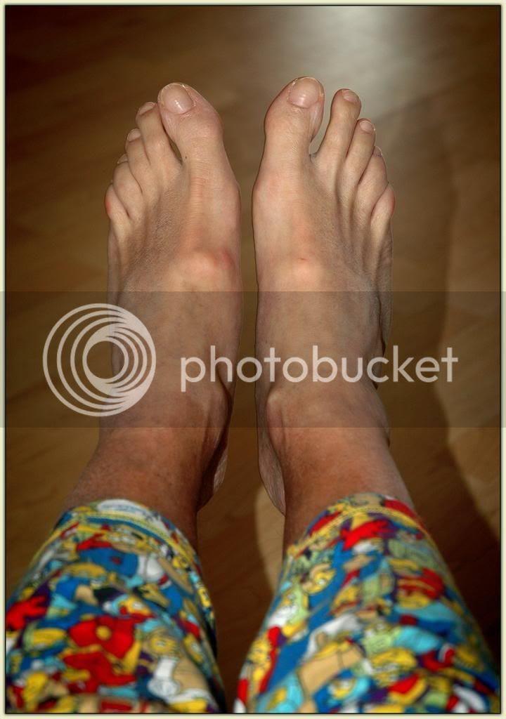 Monkey Shit Feet