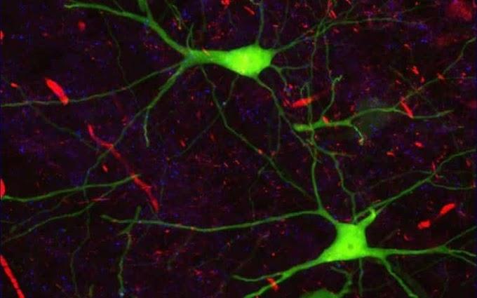 IA usada para decodificar sinais cerebrais e prever comportamento