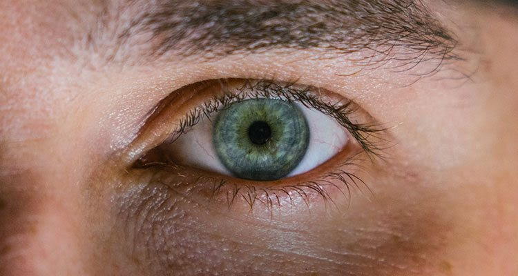 7 Tips To Get Rid Of Black Under Eye | How To Eliminate ...