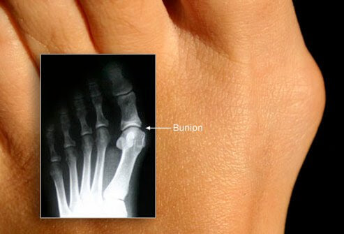 A photo of a bunion with an inset X-ray image.