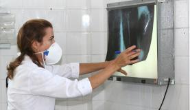 Tuberculose matou 1,8 milhão de pessoas em 2015, diz OMS