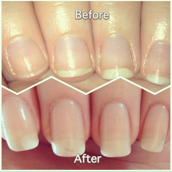 before-and-after-nail-growth
