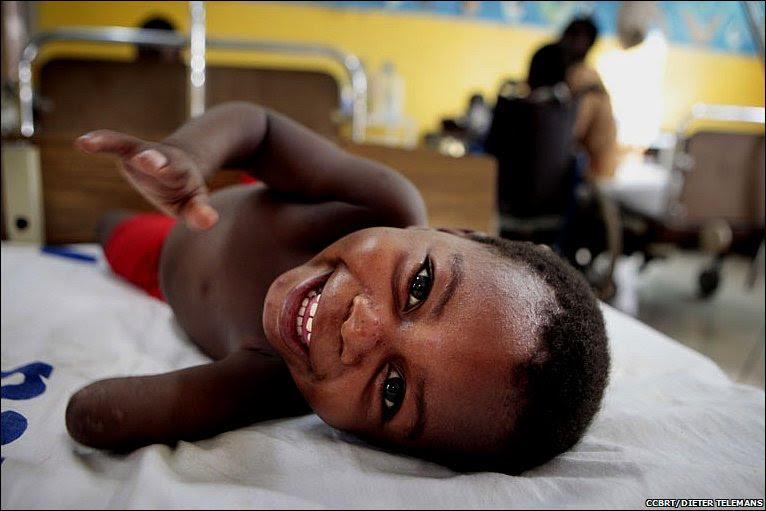 Amina laughing © CCBRT/DIETER TELEMANS
