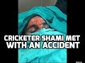 Cricketer Shami met with a Car Accident - Stitches on Head, Watch the Video