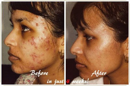 Does Acne No More Work