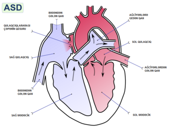 English: Atrial septal defect (ASD) is a form ...