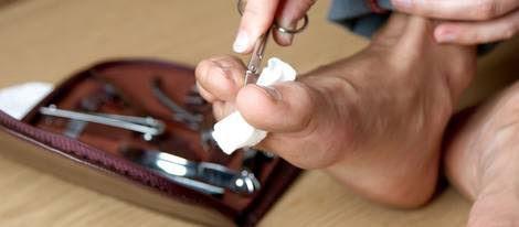 Corta las uñas de tus pies teniendo especial cuidado en la encarnada