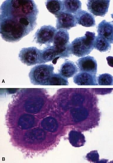 Malignant Mesothelioma Cytology