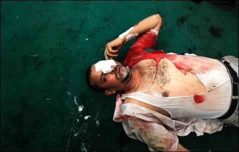 Un partidario de Mursi herido, dentro de una mezquita en la plaza Ramses en El Cairo.