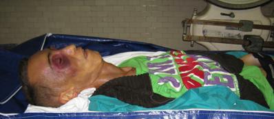 Il corpo di Stefano Cucchi (Ansa)