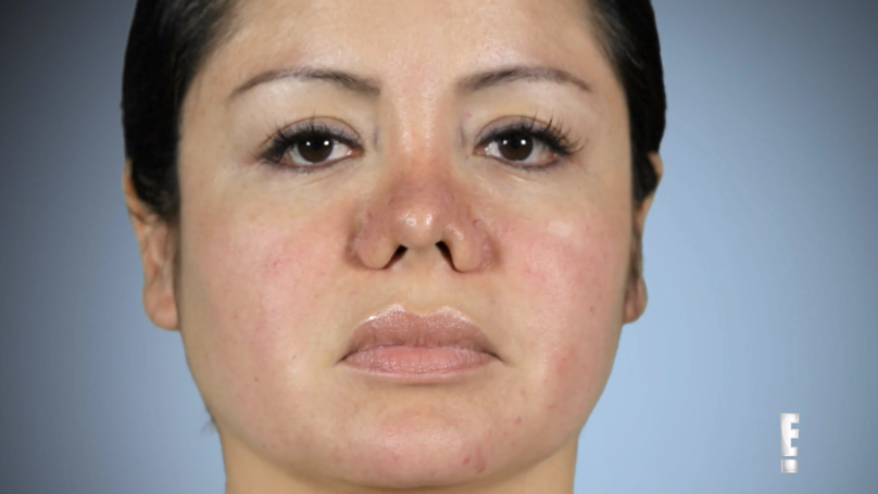 ​Woman Goes For Lipo But Wakes Up To Find She's Been Given A Nose Job