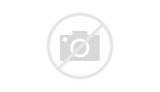 Acute Pain Related To Inflammation Photos