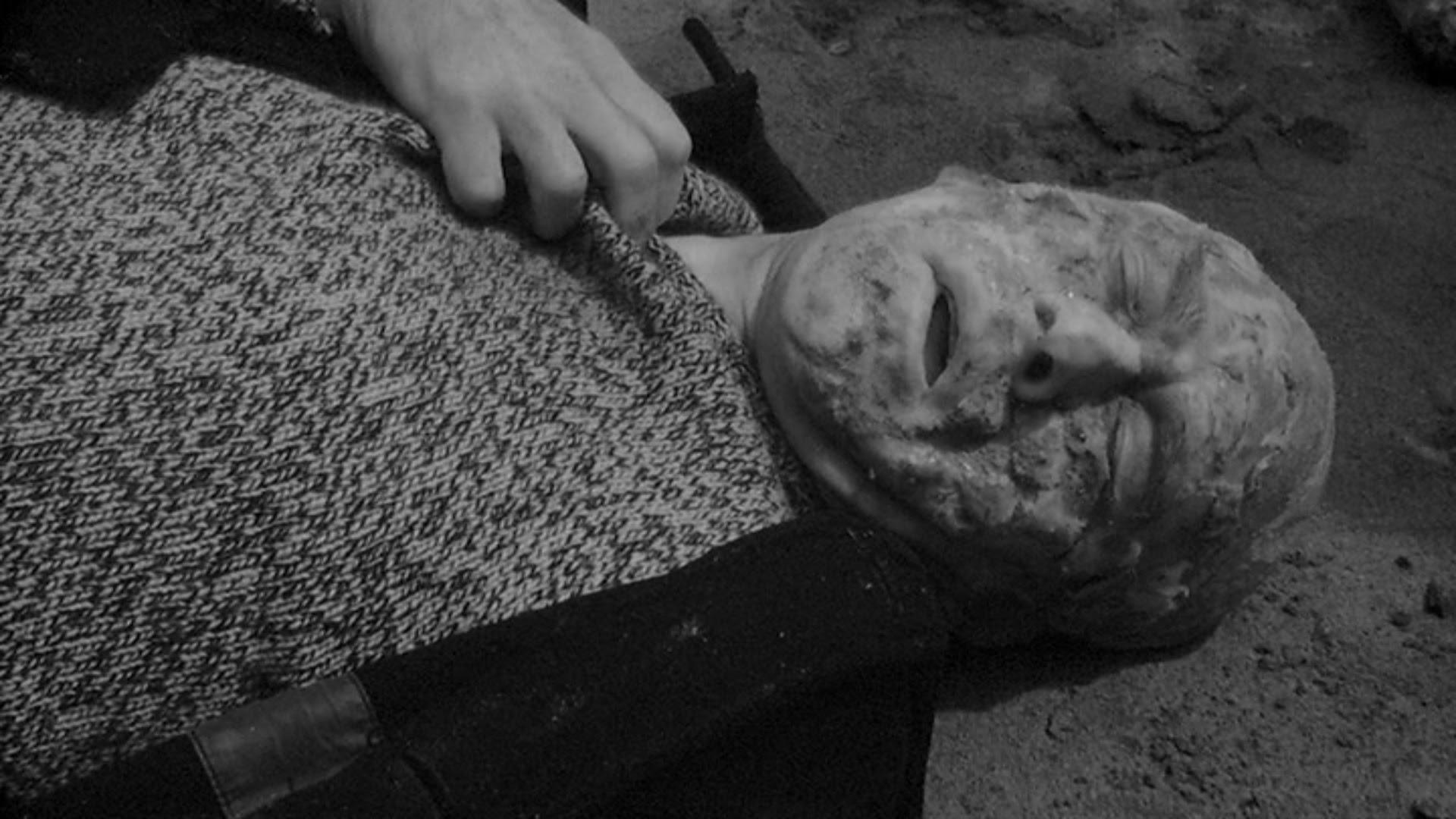 Another radiation victim.