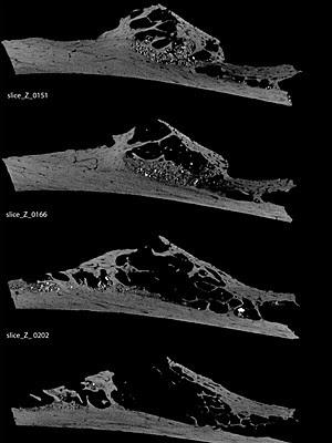 Tomografia mostra detalhes internos do tumor  (Foto: Courtesy of GW Weber/U. Vienna/PLOS One)