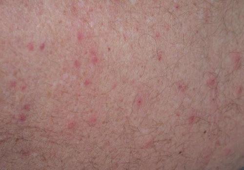 Viêm lỗ chân lông là vấn đề về da không ảnh hưởng đến sức khỏe nhưng làm mất thẩm mỹ vẻ bên ngoài