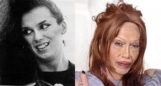 Disastres de cirurgia plástica de celebridades - Pete Burns