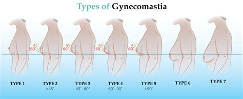 gynecomastia cure  rid  man breast