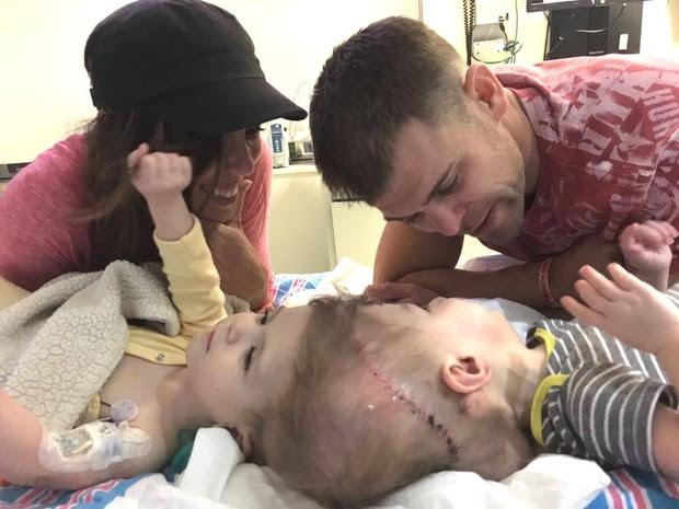 Gêmeos siameses Jadon e Anias McDonald passaram por uma cirurgia de separação que terminou na manhã desta sexta-feira (14). (Foto: Reprodução/Facebook/Nicole McDonald)