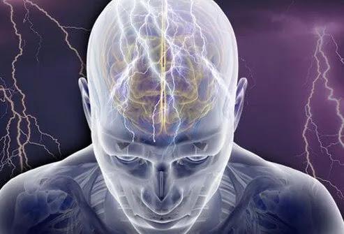 Illustration of seizure.