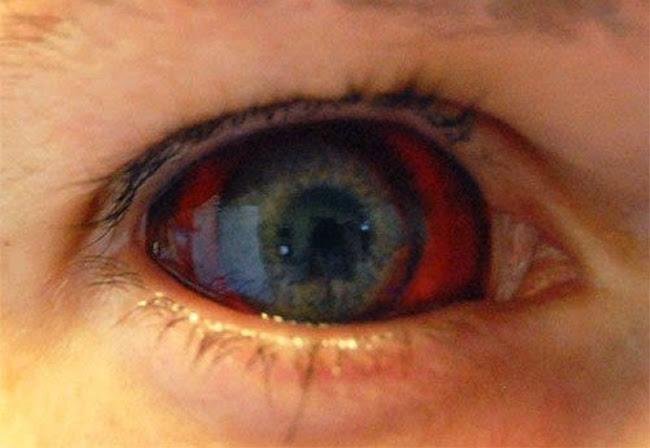 olho_ebola