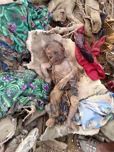 Saudi Aggression on Yemeni Children