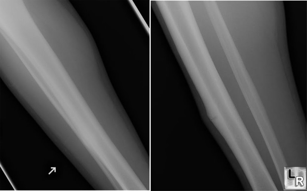 Learning Radiology Stress Fracture Tibia