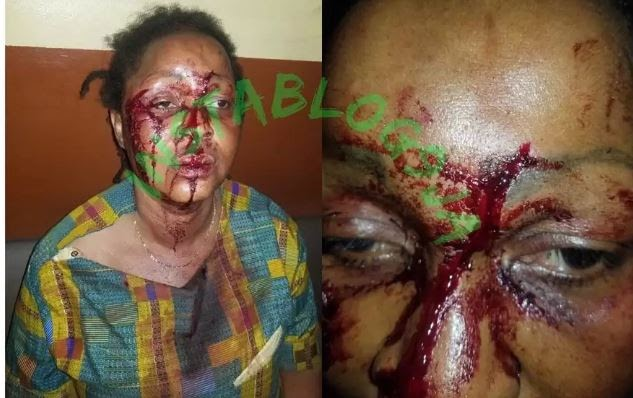 How Pastor And Wife Attempted To Kill Sister Over Property (Photo)