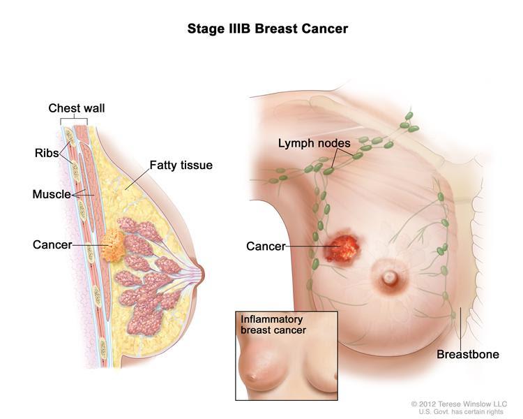 kanser-payudara-tanda