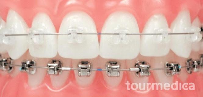 _przezroczysty-aparat-ortodontyczny-damon