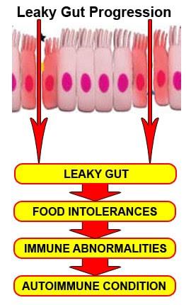 Intolerância alimentar e intestino solto