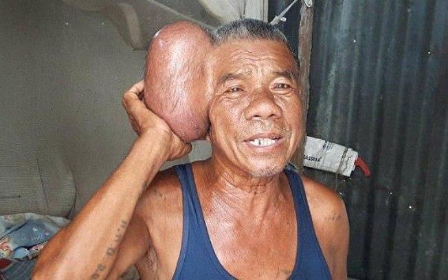 Caso de homem que passou 10 anos com tumor de 2 kg na cabeça choca