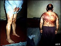 Piernas y espalda de un iraquí que dijo haber sido torturado