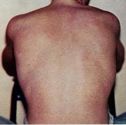English: A typical rash as seen in dengue fever.