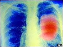 BBC NEWS  UK  Scotland  Asbestos claim law change backed
