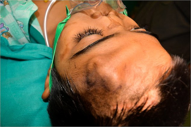 Surgeons used cartilage from his chest to grow the new nose on his forehead. It was then transplanted into position on his face