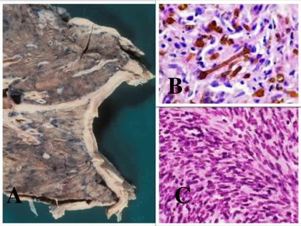 Mesothelioma Histological Diagnosis